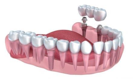 Implant dentaire : Pourquoi recourir à un implant ?